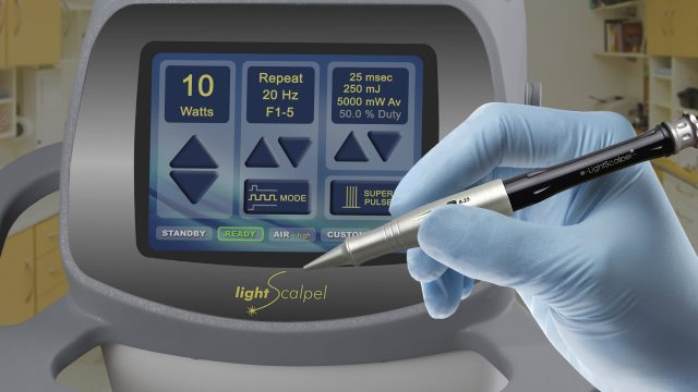 Featured Image For LightScalpel – the quick & efficient way to revise lip/tongue ties!